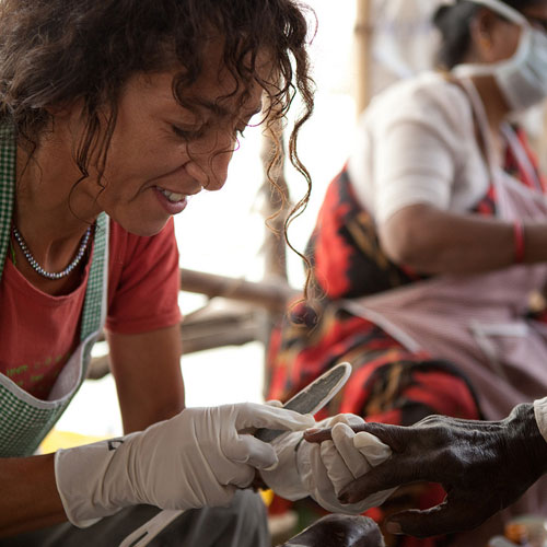 Die Holländerin Malaika pflegt die Hände eines Leprakranken in der Chitpur-Klinik.
